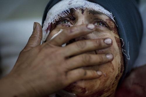 PULİTZER'DE FOTOĞRAF ÖDÜLLERİ SURİYE'DE ÇEKİLEN KARELERE GİTTİ 15