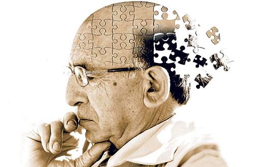 Alzheimer'ın 10 belirtisi ve tedavi yöntemleri 1
