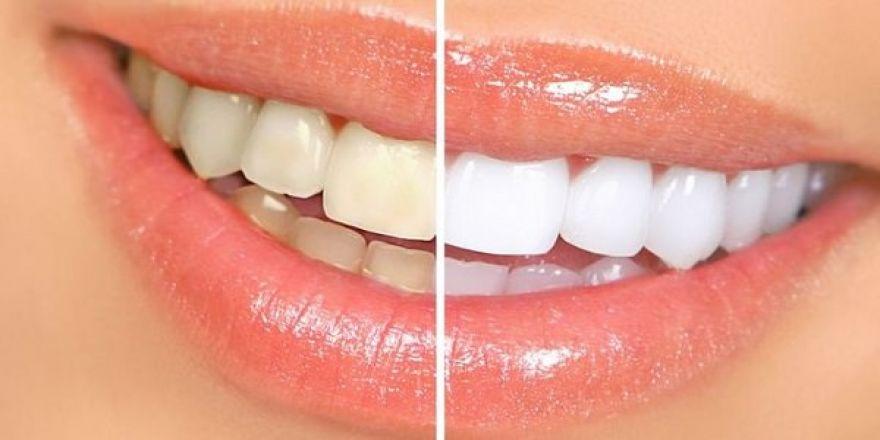 Dişleri beyazlatmanın 5 yolu