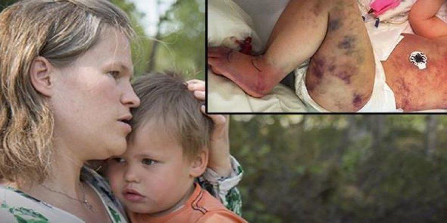 3 yaşındaki oğlunu arı soktu sandı...