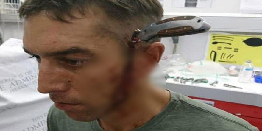 Herkes Çığlık attı! Başına Saplanmış 15 cm'lik bıçakla...