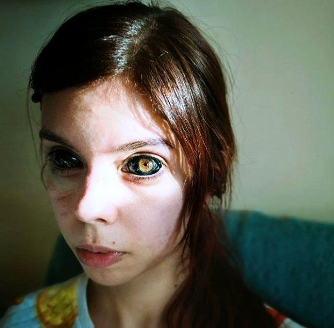 Hayranı olduğu şarkıcıya özenip gözlerine dövme yaptıran 25 yaşındaki ge 1