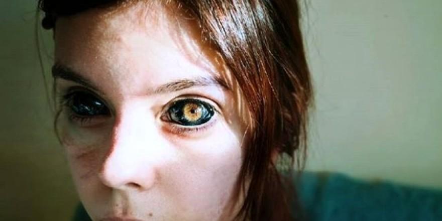 Hayranı olduğu şarkıcıya özenip gözlerine dövme yaptıran 25 yaşındaki ge