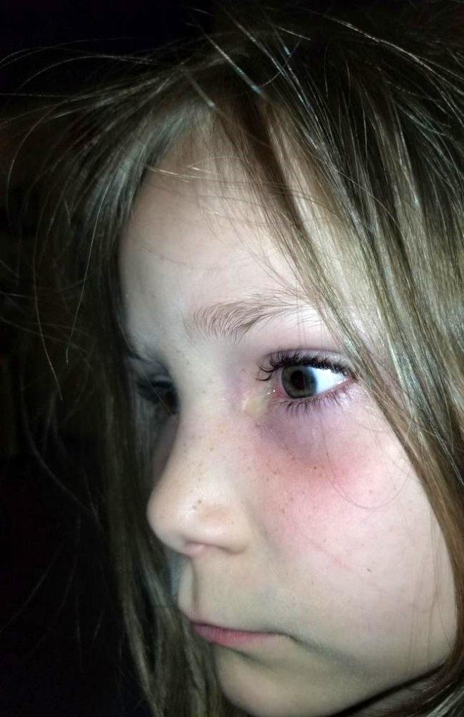 Acı içerisinde uyanan 6 yaşındaki kızın gözünden bezelye tanesi büyüklüğ 1