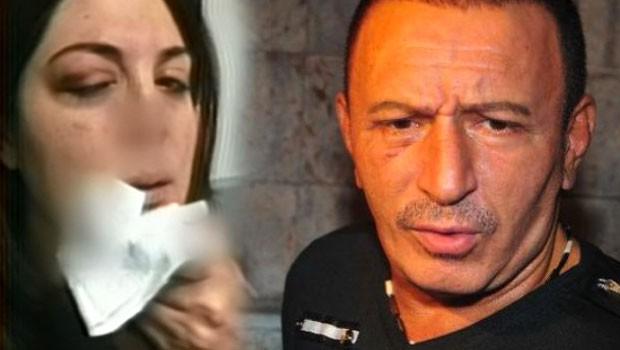 Mustafa Topaloğlu Hastanelik Etti!