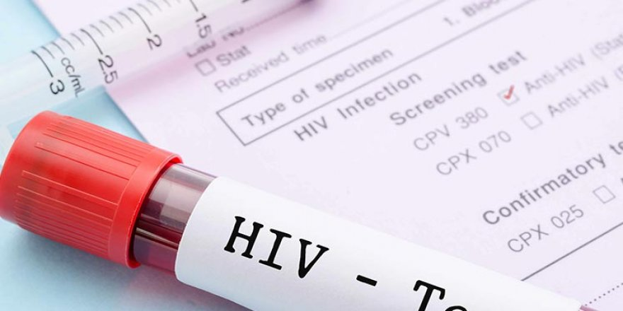 HIV'DE ÜRPERTEN TABLO