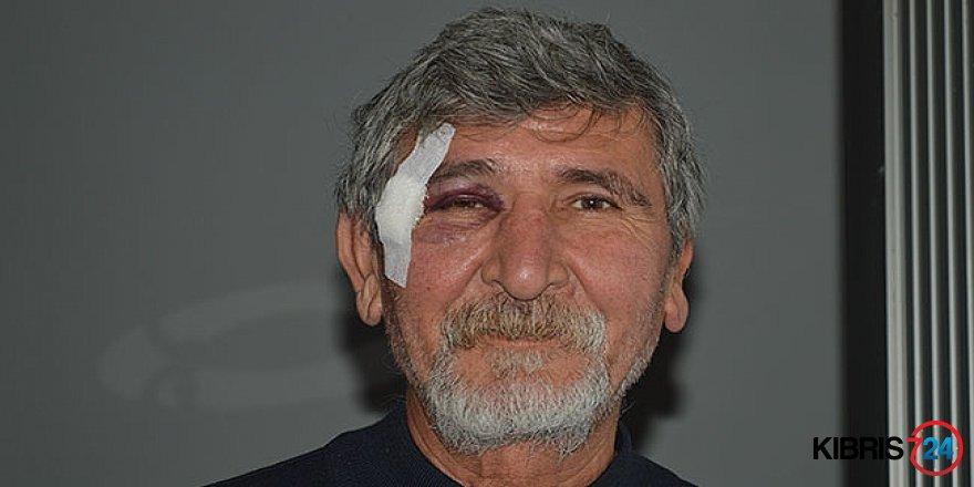 POLİSTE ÇİFTE STANDART!