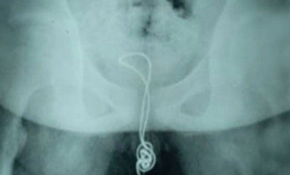 Cinsel organına USB kablosu sıkıştı!