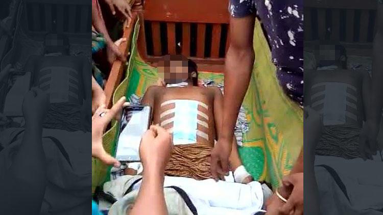Karın ağrısıyla gittiği hastanede tüm iç organları çalındı!
