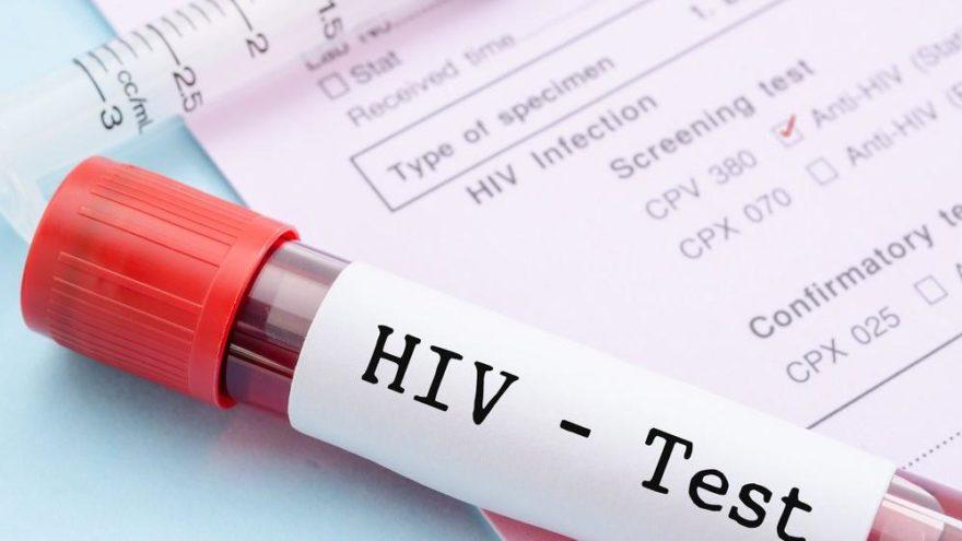 3 binden fazla kişiye HIV bulaşmış olabilir!