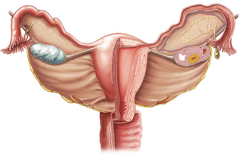 Kadınlarda rahim içi problemlere dikkat