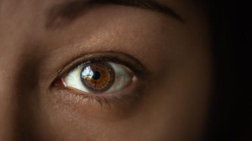 Gözlerinizi aşırı ovuyorsanız dikkat!