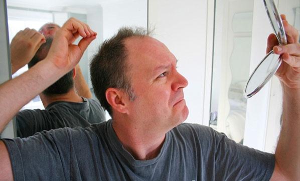 Erkek tipi saç dökülmelerinin sebepleri nedir?