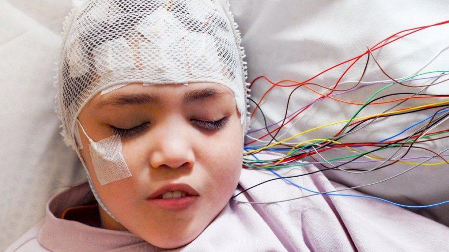 Epilepsi nasıl anlaşılır? Belirtileri ve tedavisi…