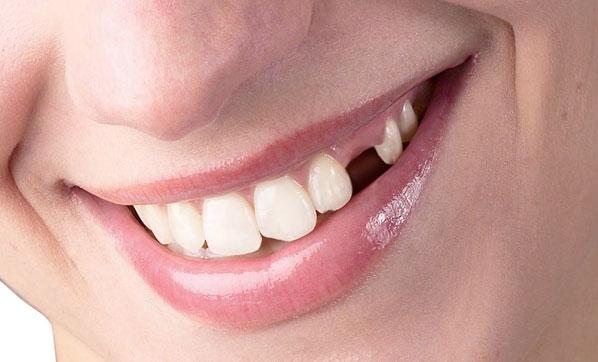 Reflü dişlerinizi yok etmesin