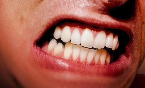 Uykuda diş sıkmaya dikkat!