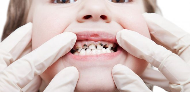 Biberon çürükleri diş yapısını bozuyor