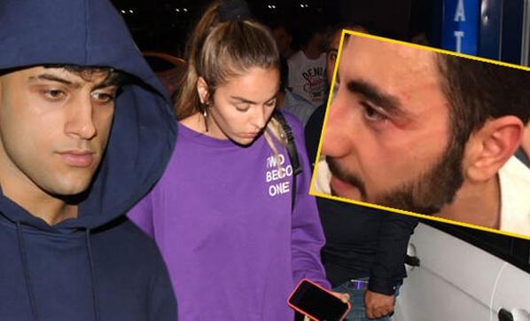 Muhabirlere saldıran Reynmen karakolluk oldu!