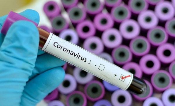 """Yeni tip koronavirüsün adı """"Covid-19"""" olarak değiştirildi!"""