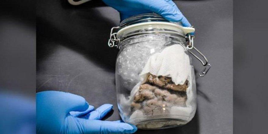 Sınırdan geçen posta aracında kavanoza koyulmuş insan beyni bulundu