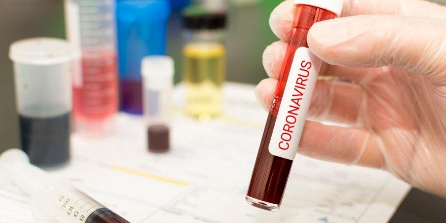 Yeni tip corona virüsü yıllar önce ortaya çıkmış olabilir