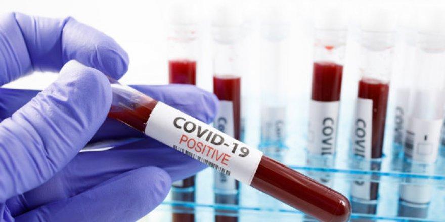 Güney Kıbrıs'ta korona virüs tedavisi gören bir kişi daha hayatını kaybetti