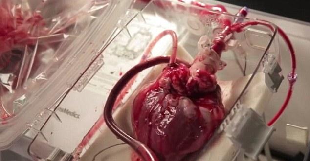 Tüm dünyaya gösterdi! Kanını ve kalbini alıp... (+18)