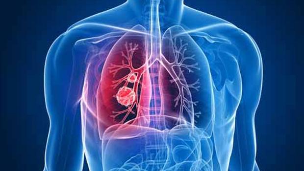 Akciğer Kanserinde En Büyük Suçlu Sigara