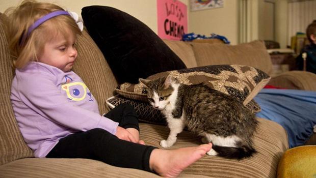 10 aylıkken ampute olan küçük kız ve 3 bacaklı kedinin yürek ısıtan dostluğu