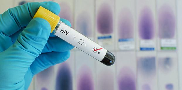 HIV TAŞIYICILARI ARASINDA