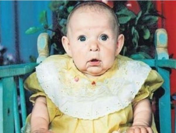Babası, Suratını Görünce Bebeğini Terk Etti