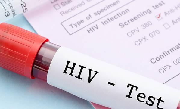 AVUSTRALYALI BİLİM İNSANLARI DUYURDU: AIDS ALT EDİLDİ