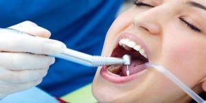 'Diş çürüğü ilacı' dolguların yerine geçebilir