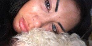 Binlerce lira verdi göz rengini değiştirmek için ameliyat oldu kör oldu