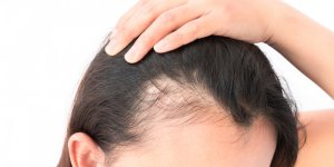 Saç kayıpları yaşayanlar dikkat!