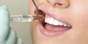 Diş çekimlerinden sonra bunlara dikkat!