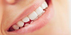 Çürük diş kalp enfeksiyonuna sebep oluyor