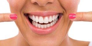 Diş beyazlatıcı jellere dikkat!