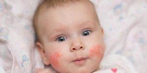 Bebeklerde görülen bu izlere dikkat!