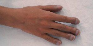 Tırnaklarınız parmak probleminin habercisi!