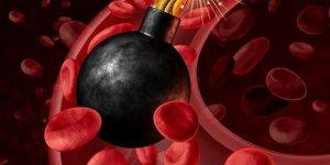 Çok düşük seviyede kötü kolesterol inme sebebi!