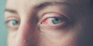 Göz sulanması neden olur? Nasıl geçer?