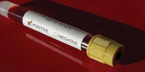 Rum Tarım Bakanının Covid-19 testi pozitif