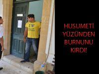 HUSUMETİ YÜZÜNDEN BURNUNU KIRDI!