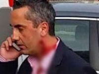 BURAK ALTINDAL 'AZRAİL'E 5'İNCİ KEZ ÇALIM ATTI